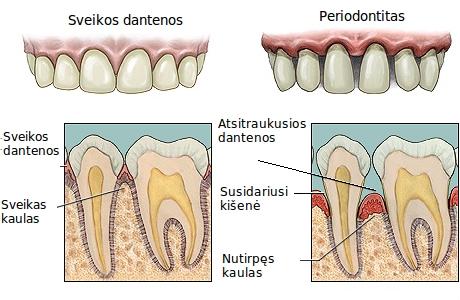 periodontitas